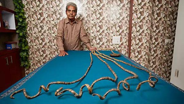 صور - بالصور صاحب اطول اظافر فى العالم