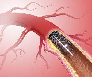 عامات القلب هي انابيب صغيرة دقيقة قابلة للتمدد والتي تعالج الشرايين الضيقة في الجسم، فالأشخاص الذين يعانون من أمراض القلب التاجية الناجمة عن تراكم ...