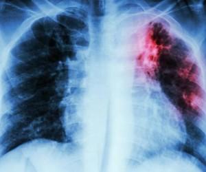 10 من الأمراض المعدية التي غيرت التاريخ
