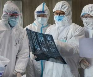 تشير دراسة صغيرة خارج الصين إلى أن فيروس كورونا الجديد يمكن أن يستمر في الجسم لمدة أسبوعين على الأقل بعد زوال أعراض المرض، وقال الخبراء إن هذا النوع ...